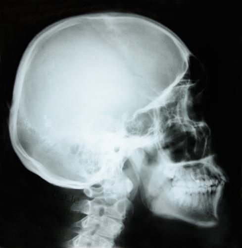 does dental treatment really work for tmj disorder comment skullX Ray Skull Views
